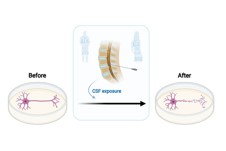 diagram showing the effect of CSF on cells