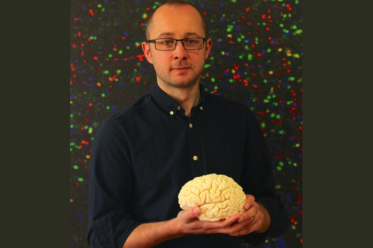Dr Chris Henstridge holding a model brain
