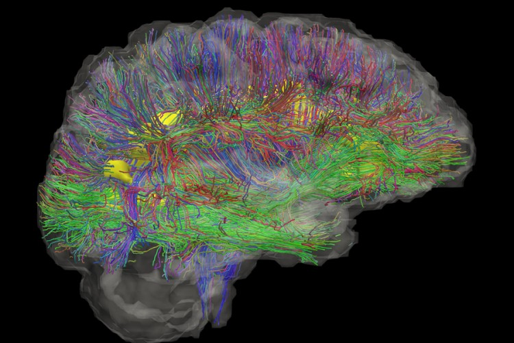 Image generated by a hi-tech brain scan